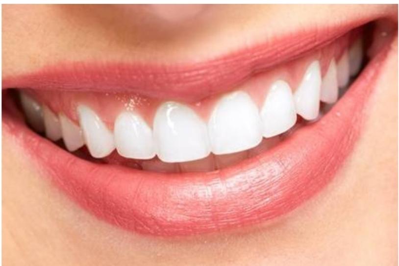 Niềng răng không nhổ răng tại Nha Khoa Thái Dương