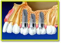 Có nên cấy ghép Implant không?