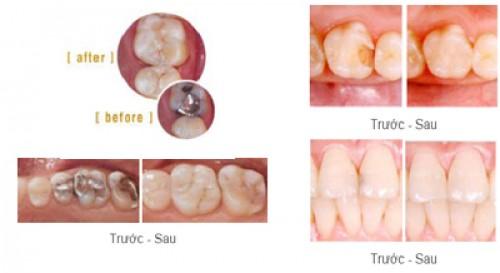 Trám răng Thẩm mỹ giá rẻ nhất, đẹp nhất TP HCM Saigon