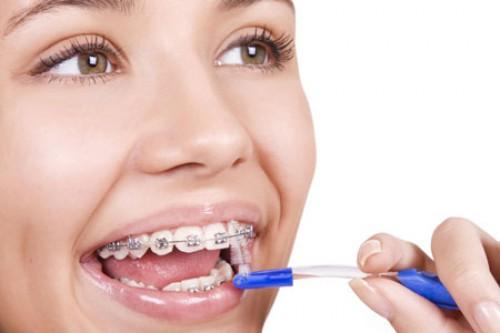 Niềng Răng hô răng móm 2 hàm