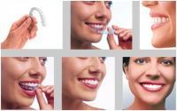Chỉnh răng không cần đeo mắc cài