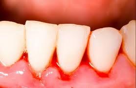 Những bệnh răng miệng nào thường gặp