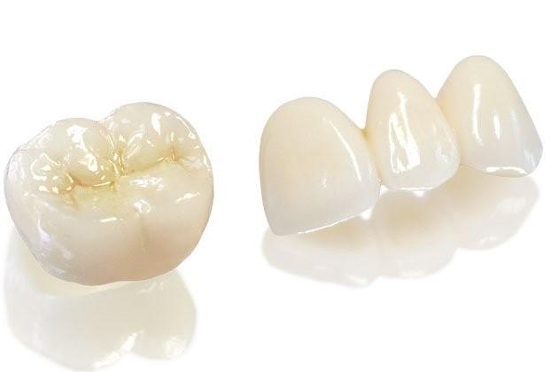 Chi phí răng toàn sứ Nhật Katana là bao nhiêu?
